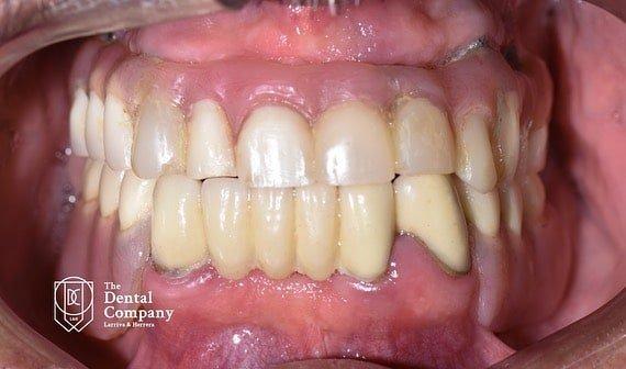 tratamientos dentales antes y despues cuenca (2)