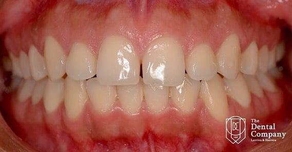tratamientos dentales antes y despues cuenca (3)