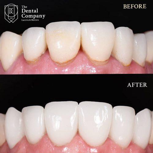 dental antes y después tratamientos thedentalcompanyec